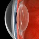 линза глаза